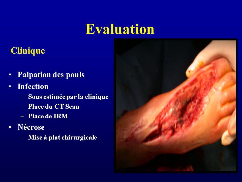 Evaluation Clinique Palpation des pouls Infection –Sous estimée par la clinique –Place du CT Scan –Place de IRM Nécrose –Mise à plat chirurgicale