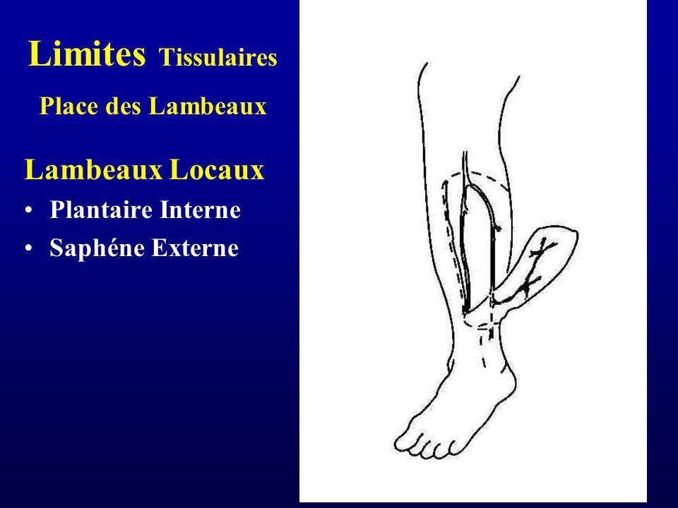 Limites Tissulaires Place des Lambeaux Lambeaux Locaux Plantaire Interne Saphéne Externe