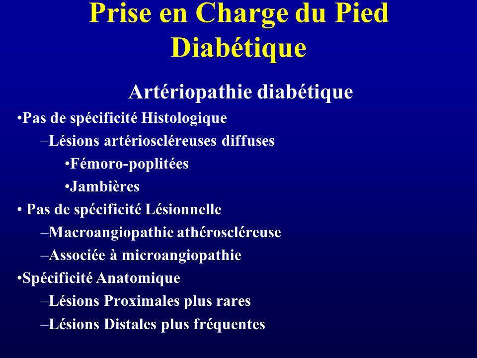 Prise en Charge du Pied Diabétique Artériopathie diabétique Pas de spécificité Histologique –Lésions artérioscléreuses diffuses Fémoro-poplitées Jambi