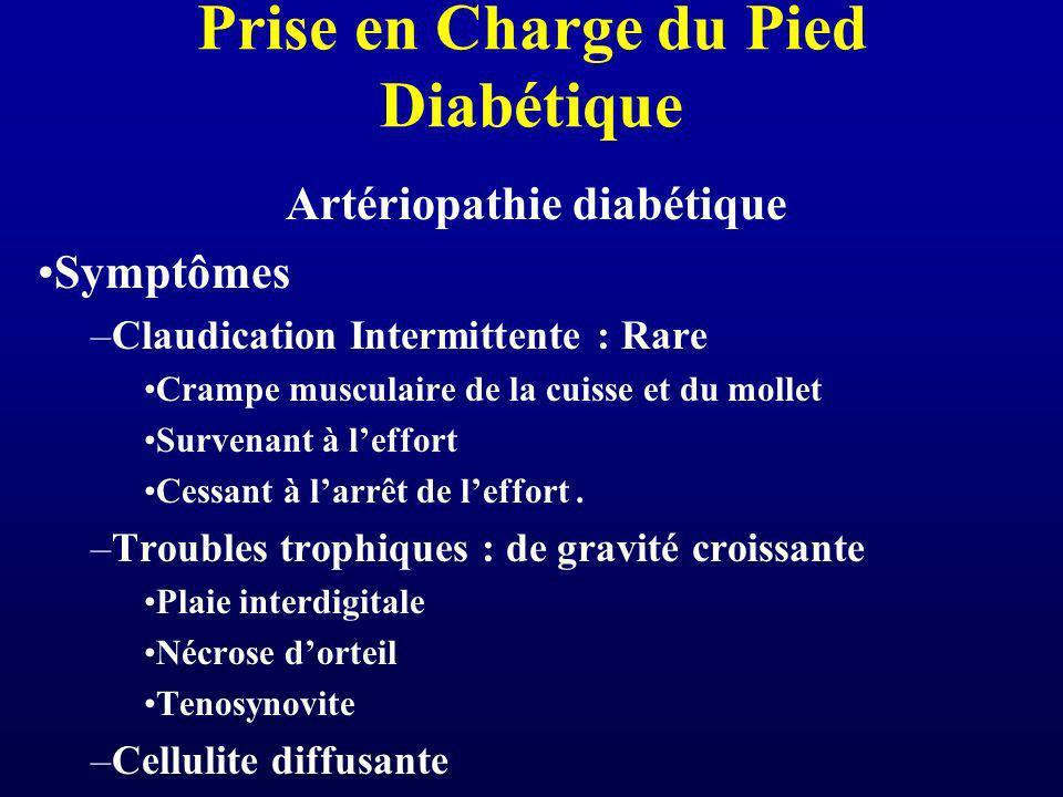 Prise en Charge du Pied Diabétique Artériopathie diabétique Symptômes –Claudication Intermittente : Rare Crampe musculaire de la cuisse et du mollet S