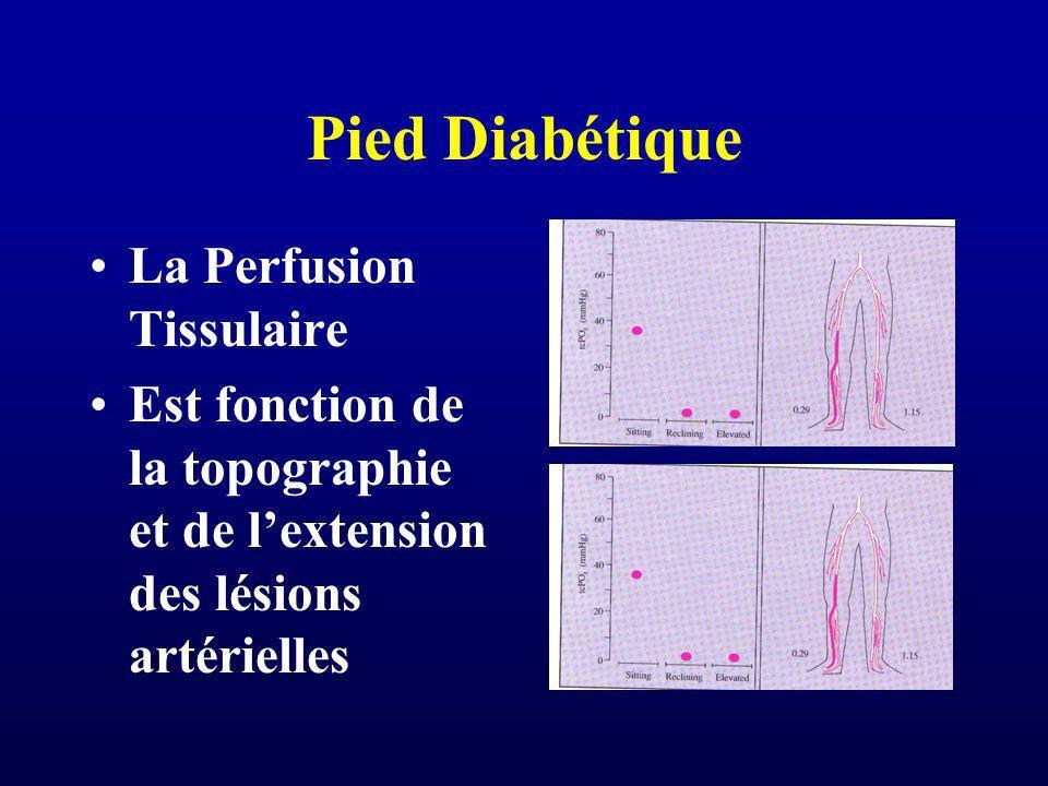 Pied Diabétique La Perfusion Tissulaire Est fonction de la topographie et de lextension des lésions artérielles