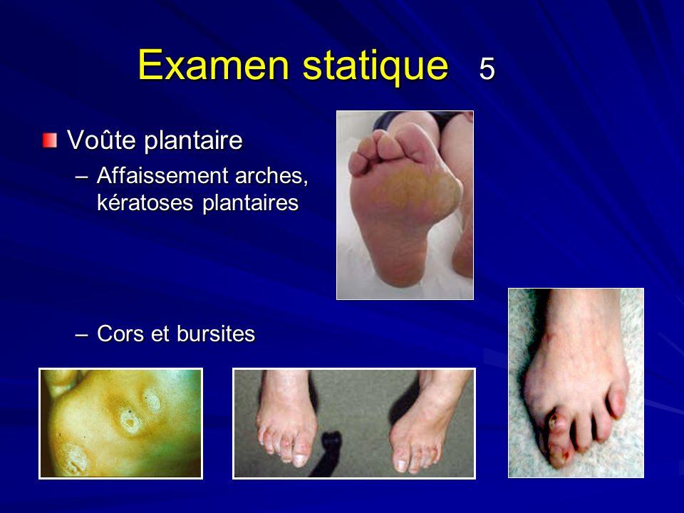 Examen statique 5 Voûte plantaire –Affaissement arches, kératoses plantaires –Cors et bursites