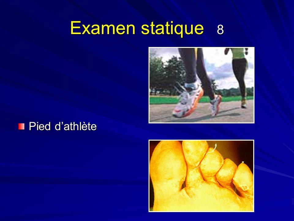 Examen statique 8 Pied dathlète