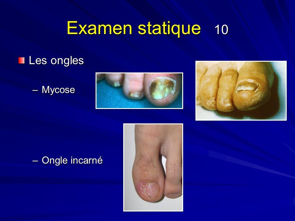 Examen statique 10 Les ongles –Mycose –Ongle incarné