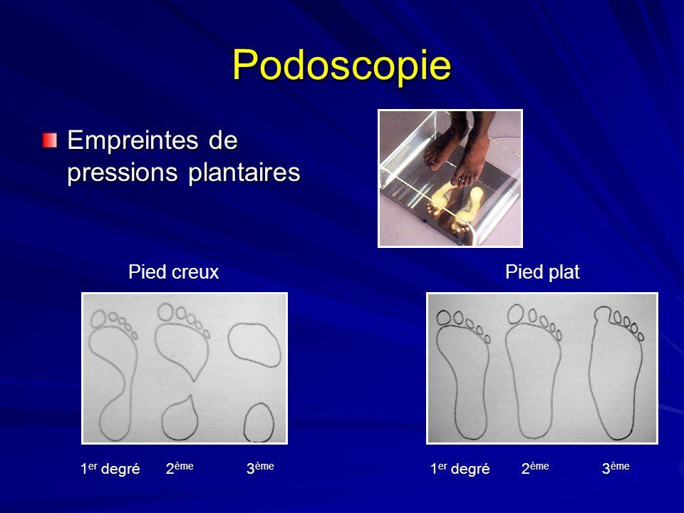 Podoscopie Empreintes de pressions plantaires Pied creuxPied plat 1 er degré2 ème 3 ème 1 er degré2 ème 3 ème