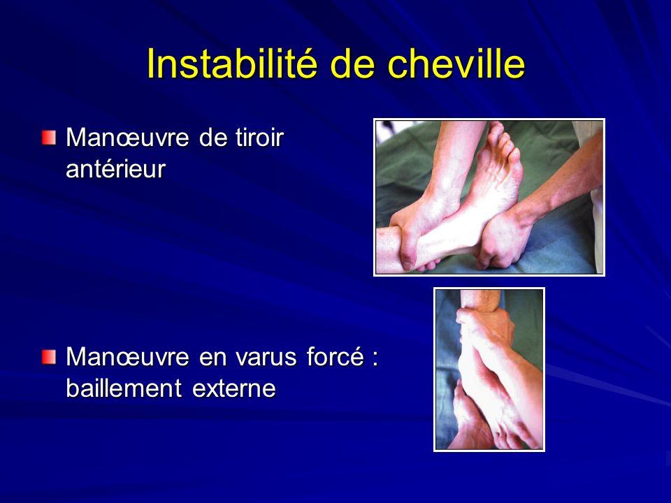 Instabilité de cheville Manœuvre de tiroir antérieur Manœuvre en varus forcé : baillement externe
