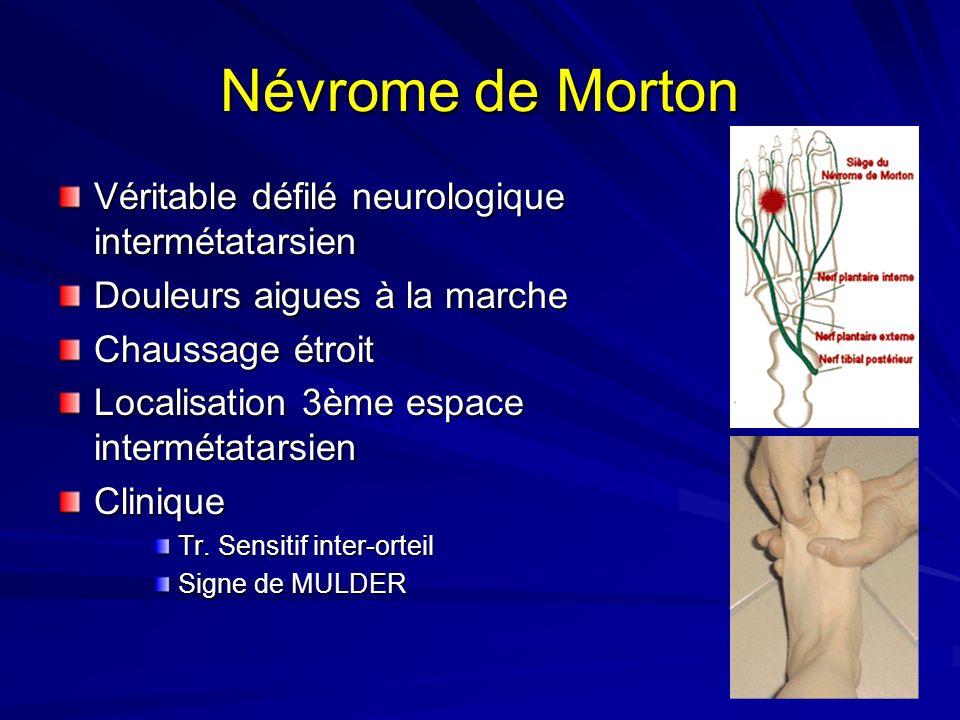 Névrome de Morton Véritable défilé neurologique intermétatarsien Douleurs aigues à la marche Chaussage étroit Localisation 3ème espace intermétatarsie