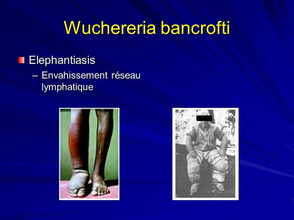 Wuchereria bancrofti Elephantiasis –Envahissement réseau lymphatique