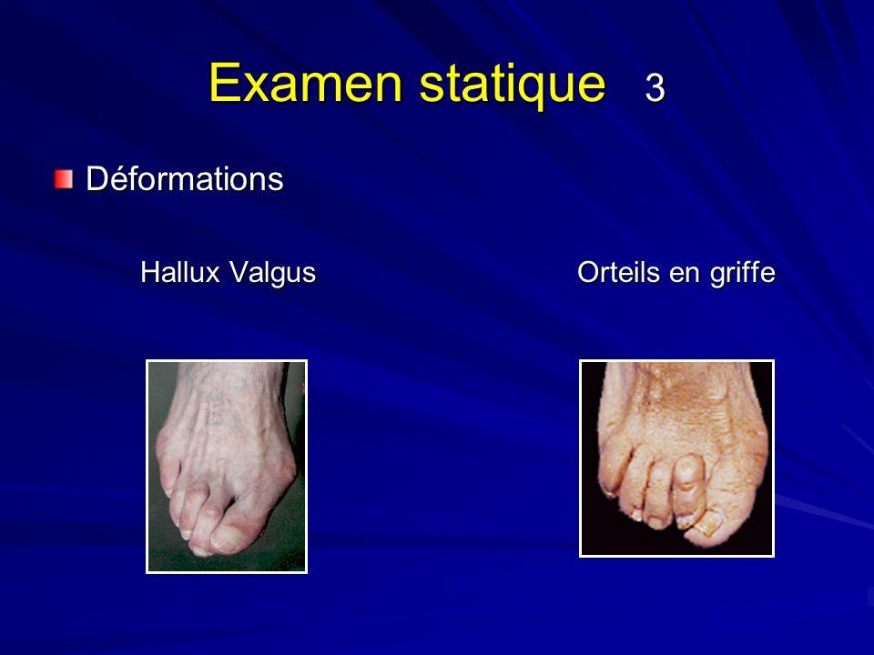 Examen statique 3 Déformations Hallux ValgusOrteils en griffe