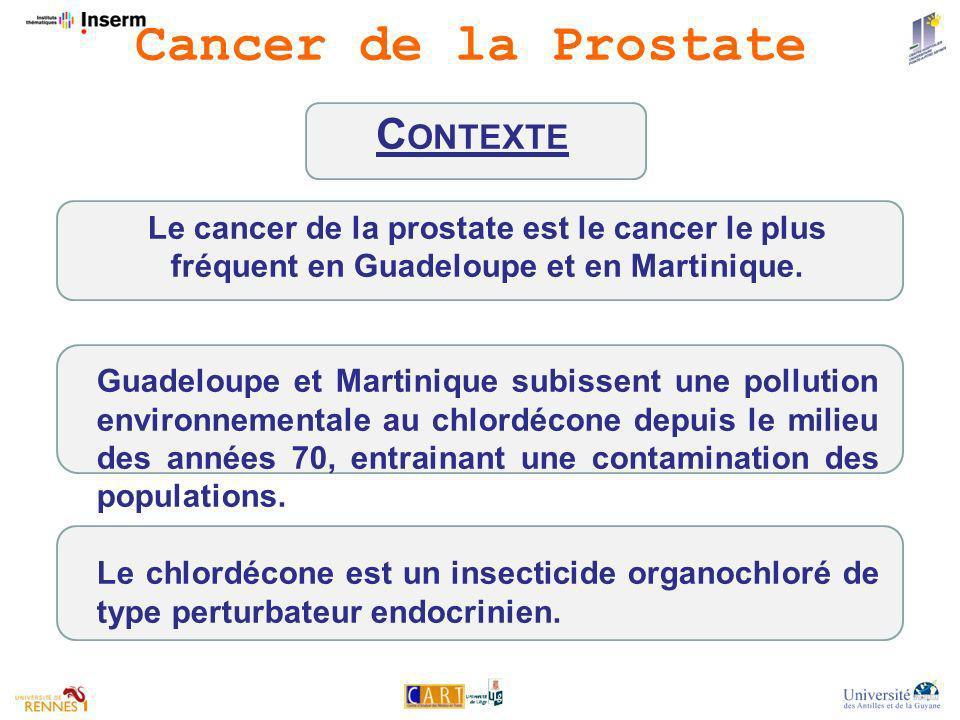 Le cancer de la prostate est le cancer le plus fréquent en Guadeloupe et en Martinique.