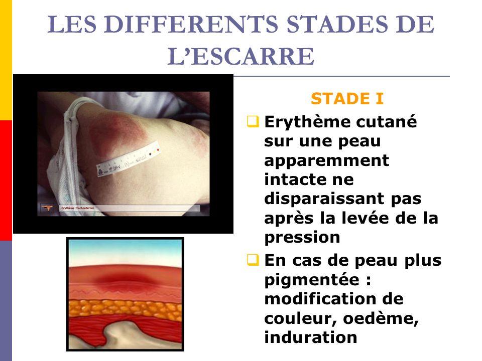 LES DIFFERENTS STADES DE LESCARRE STADE II Perte de substance impliquant lépiderme et en partie le derme, se présentant comme une phlyctène, une abrasion ou une ulcération superficielle