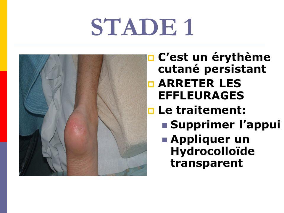 STADE 1 Cest un érythème cutané persistant ARRETER LES EFFLEURAGES Le traitement: Supprimer lappui Appliquer un Hydrocolloïde transparent
