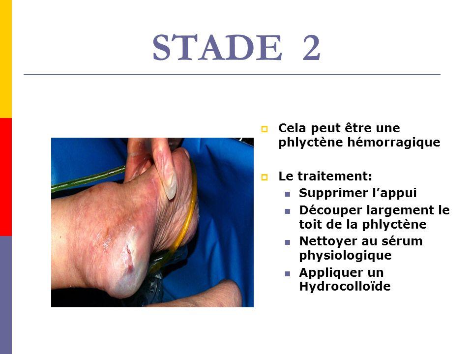 STADE 2 Cela peut être une phlyctène hémorragique Le traitement: Supprimer lappui Découper largement le toit de la phlyctène Nettoyer au sérum physiol