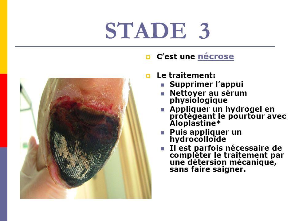 STADE 3 Cest une nécrose Le traitement: Supprimer lappui Nettoyer au sérum physiologique Appliquer un hydrogel en protégeant le pourtour avec Aloplast