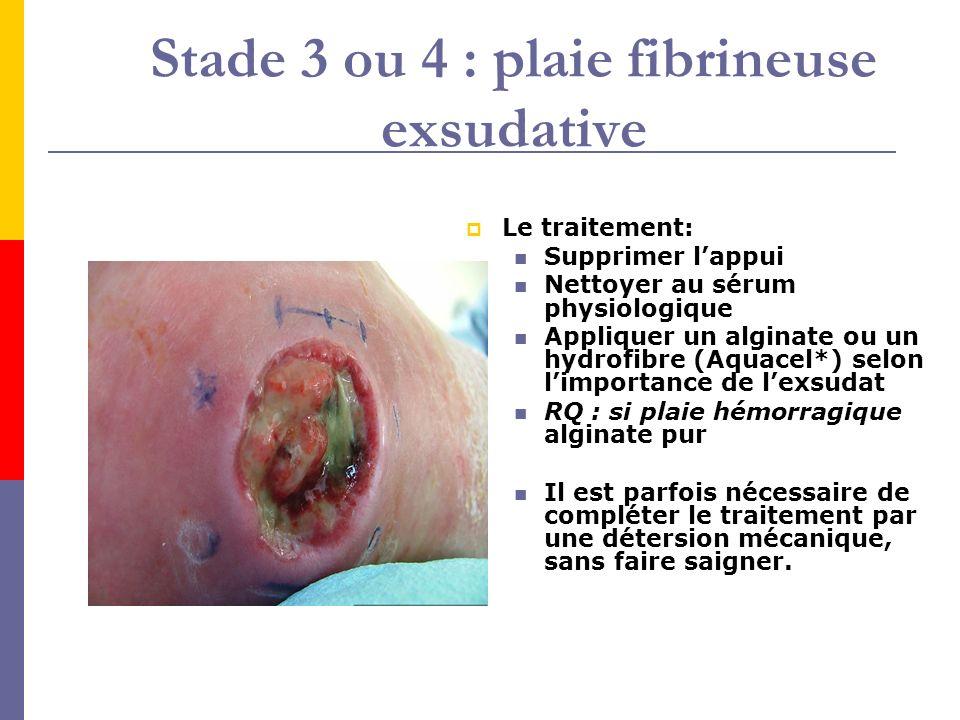 Stade 3 ou 4 : plaie fibrineuse exsudative Le traitement: Supprimer lappui Nettoyer au sérum physiologique Appliquer un alginate ou un hydrofibre (Aqu
