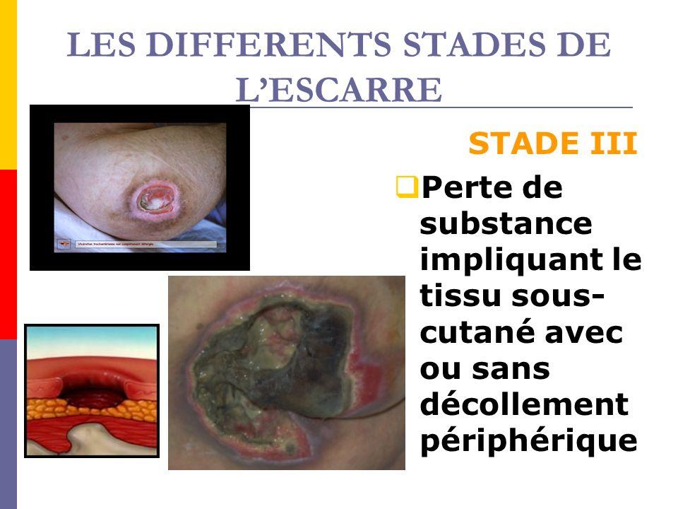 LES DIFFERENTS STADES DE LESCARRE STADE III Perte de substance impliquant le tissu sous- cutané avec ou sans décollement périphérique