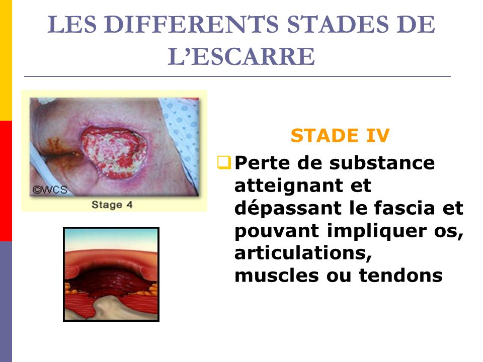 LES DIFFERENTS STADES DE LESCARRE STADE IV Perte de substance atteignant et dépassant le fascia et pouvant impliquer os, articulations, muscles ou ten