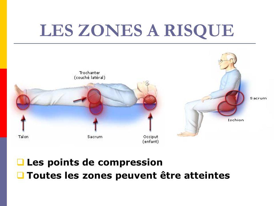 LES ZONES A RISQUE Les points de compression Toutes les zones peuvent être atteintes