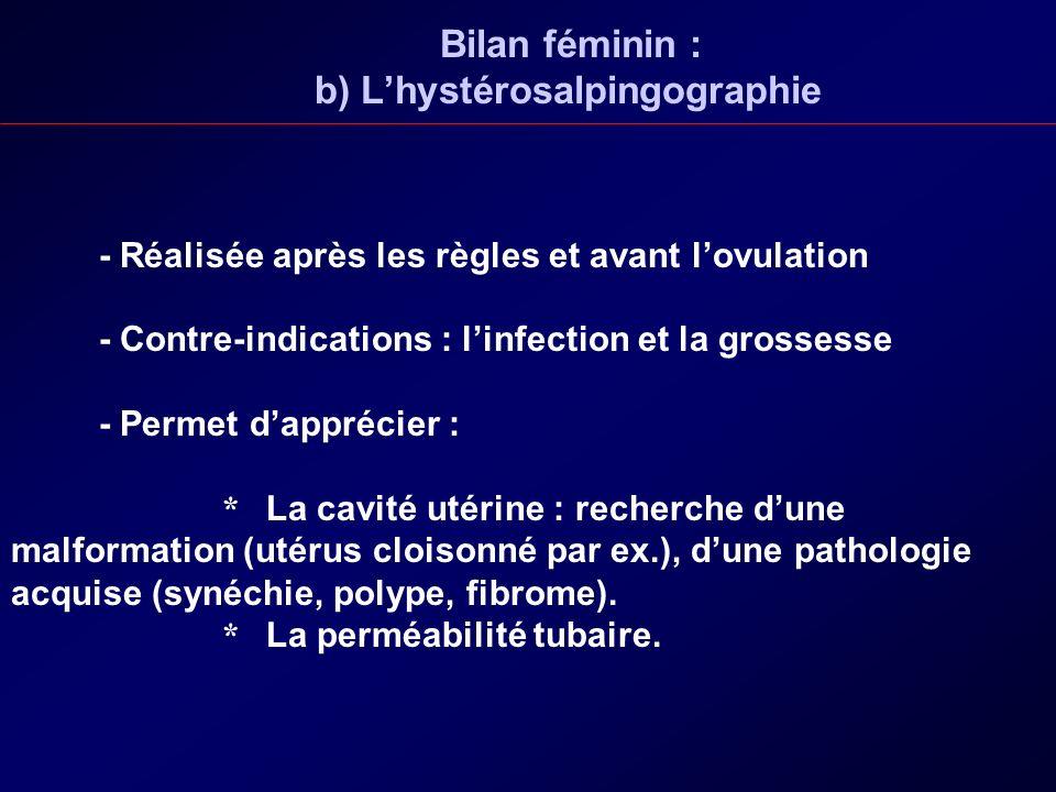 Bilan féminin : b) Lhystérosalpingographie - Réalisée après les règles et avant lovulation - Contre-indications : linfection et la grossesse - Permet
