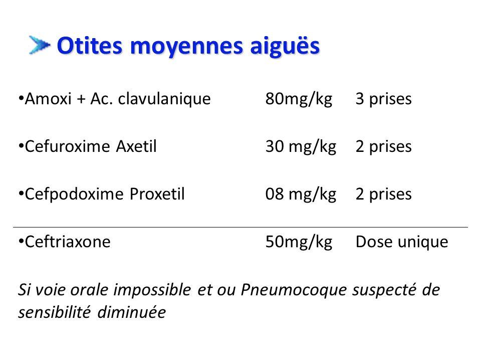 Otites moyennes aiguës Otites moyennes aiguës Amoxi + Ac. clavulanique80mg/kg3 prises Cefuroxime Axetil30 mg/kg2 prises Cefpodoxime Proxetil08 mg/kg2
