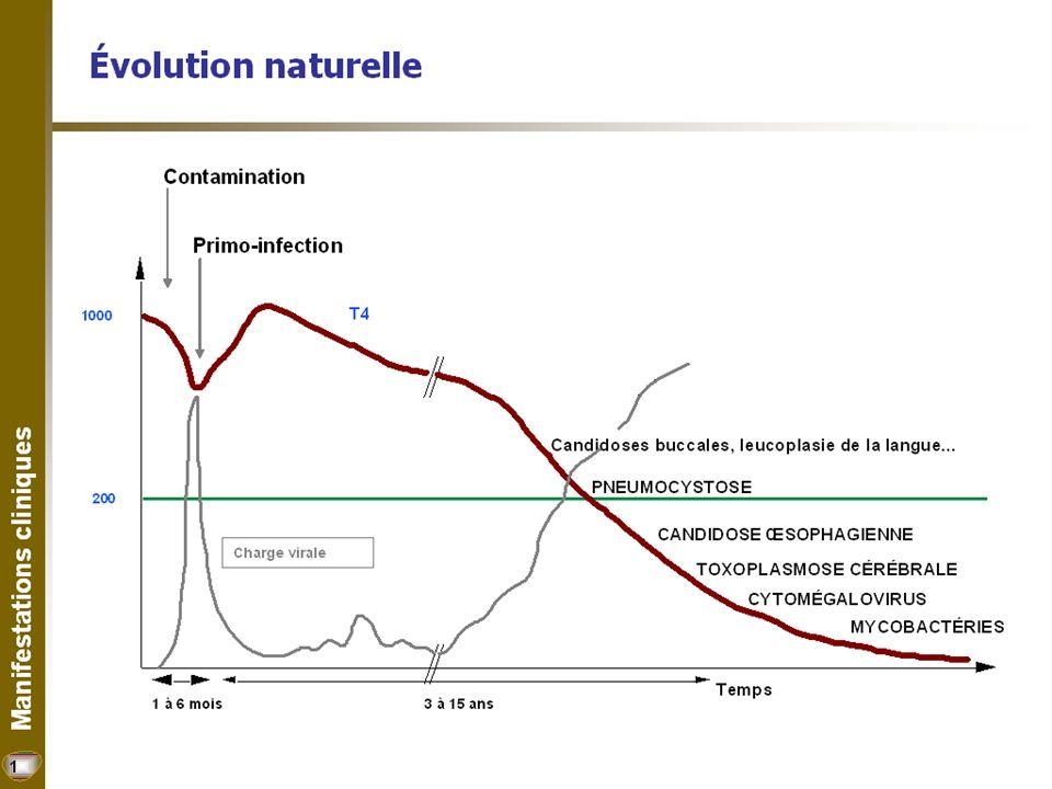 33 Lipodystrophies (perturbations de la répartition des graisses) Perte de graisse (joues, membres, fesses) : surtout due aux nucléosides (Zerit, AZT (Retrovir, Combivir, Trizivir).