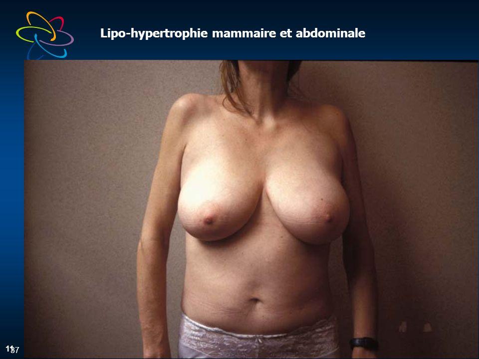 37 Lipo-hypertrophie mammaire et abdominale 11