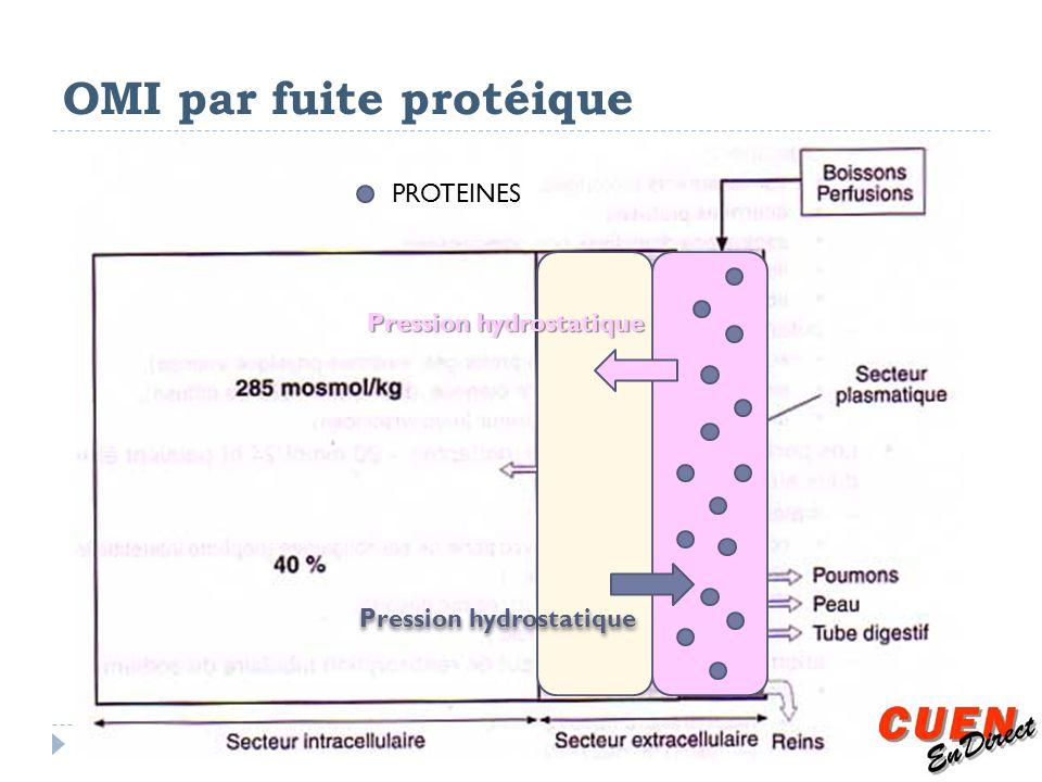 OMI par fuite protéique Pression hydrostatique PROTEINES