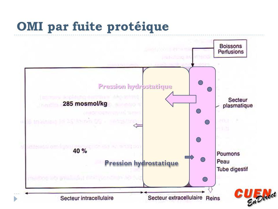 OMI par fuite protéique Pression hydrostatique