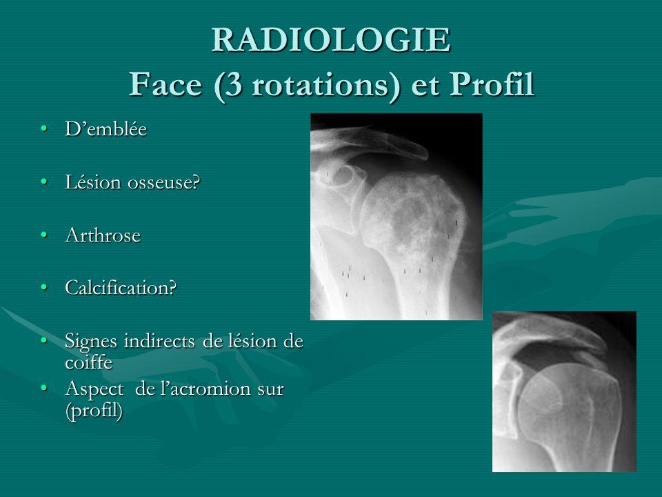 ECHOGRAPHIE Première analyse des tendonsPremière analyse des tendons Comparative+++Comparative+++ Rupture.