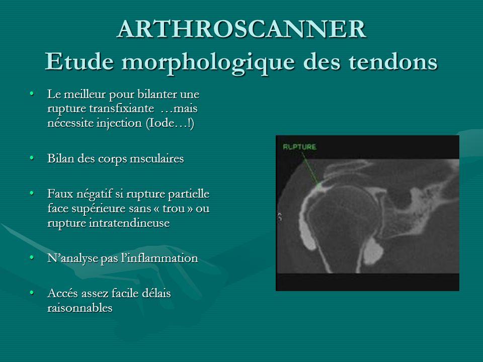 ARTHROSCANNER Etude morphologique des tendons Le meilleur pour bilanter une rupture transfixiante …mais nécessite injection (Iode…!)Le meilleur pour b