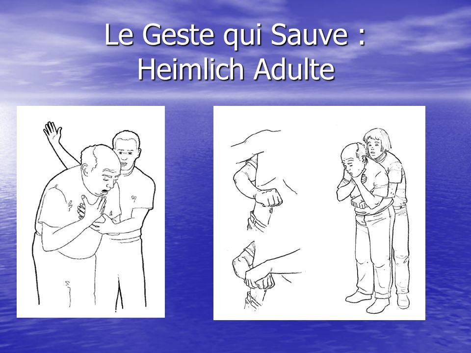 Le Geste qui Sauve : Heimlich Principe : Expulsion dun corps étranger en mobilisant un volume dair. Principe : Expulsion dun corps étranger en mobilis