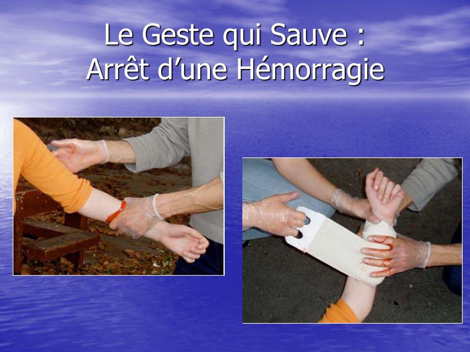Le Geste qui Sauve : Heimlich Nourrisson
