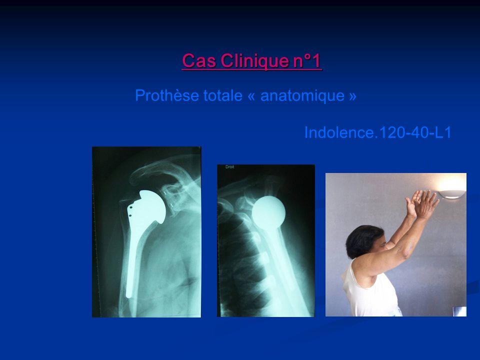 Cas Clinique n°1 Prothèse totale « anatomique » Indolence.120-40-L1