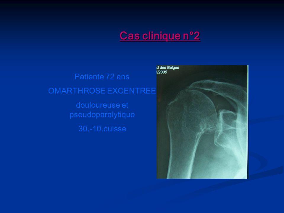Cas clinique n°2 Patiente 72 ans OMARTHROSE EXCENTREE douloureuse et pseudoparalytique 30.-10.cuisse