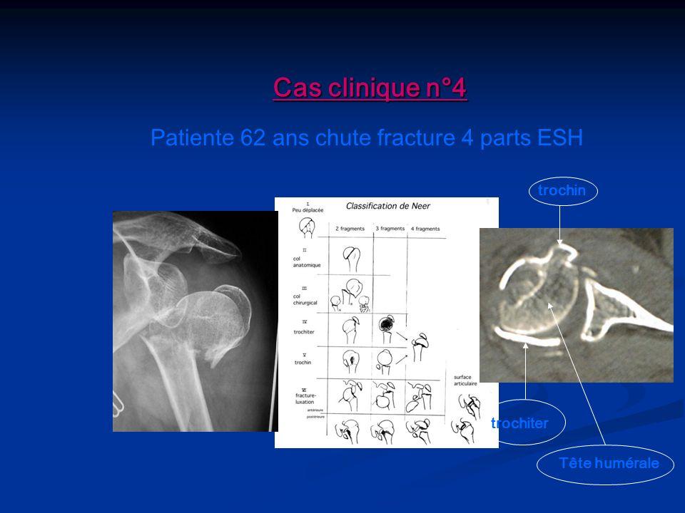 Cas clinique n°4 Patiente 62 ans chute fracture 4 parts ESH trochin trochiter Tête humérale
