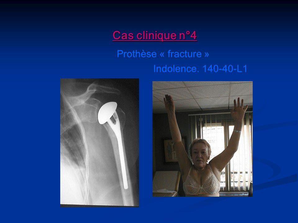 Indolence. 140-40-L1 Prothèse « fracture » Cas clinique n°4