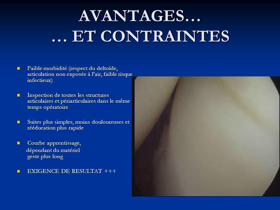 AVANTAGES… … ET CONTRAINTES Faible morbidité (respect du deltoïde, articulation non exposée à lair, faible risque infectieux) Faible morbidité (respec