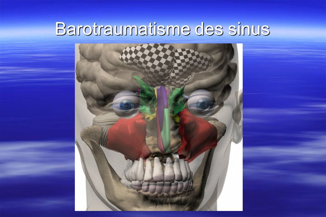 Barotraumatisme des sinus Page 95 diving