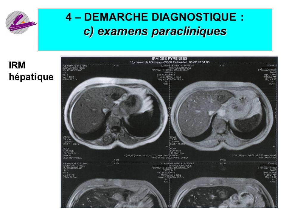 20 c) examens paracliniques 4 – DEMARCHE DIAGNOSTIQUE : c) examens paracliniques IRM hépatique