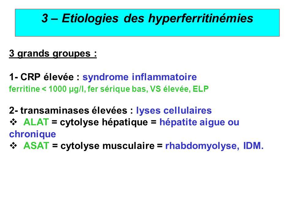 5 3 – Etiologies des hyperferritinémies 3 grands groupes : 1- CRP élevée : syndrome inflammatoire ferritine < 1000 µg/l, fer sérique bas, VS élevée, E
