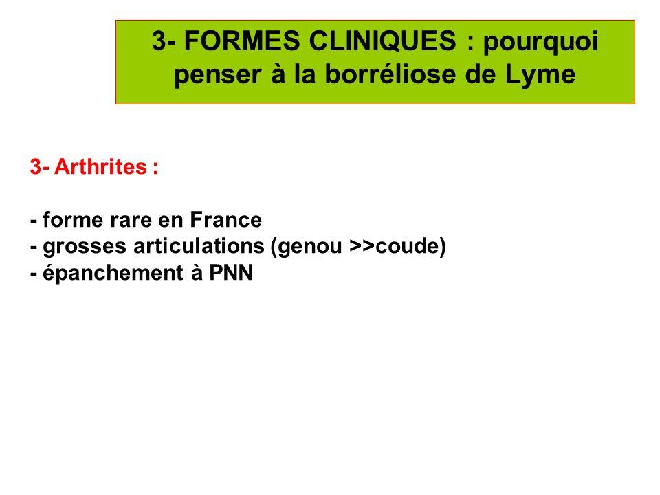 15 3- FORMES CLINIQUES : pourquoi penser à la borréliose de Lyme 3- Arthrites : - forme rare en France - grosses articulations (genou >>coude) - épanc