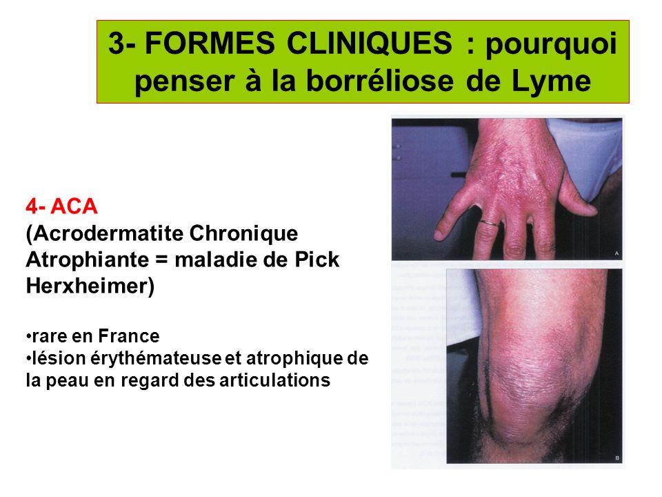 16 3- FORMES CLINIQUES : pourquoi penser à la borréliose de Lyme 4- ACA (Acrodermatite Chronique Atrophiante = maladie de Pick Herxheimer) rare en Fra
