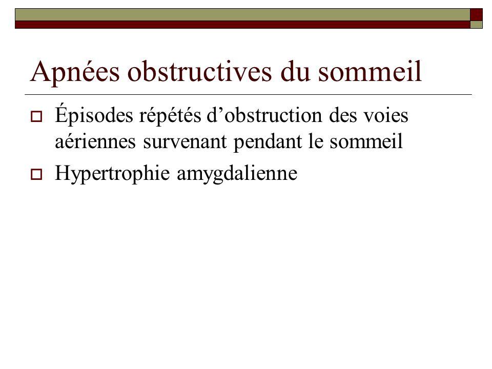 Apnées obstructives du sommeil Épisodes répétés dobstruction des voies aériennes survenant pendant le sommeil Hypertrophie amygdalienne