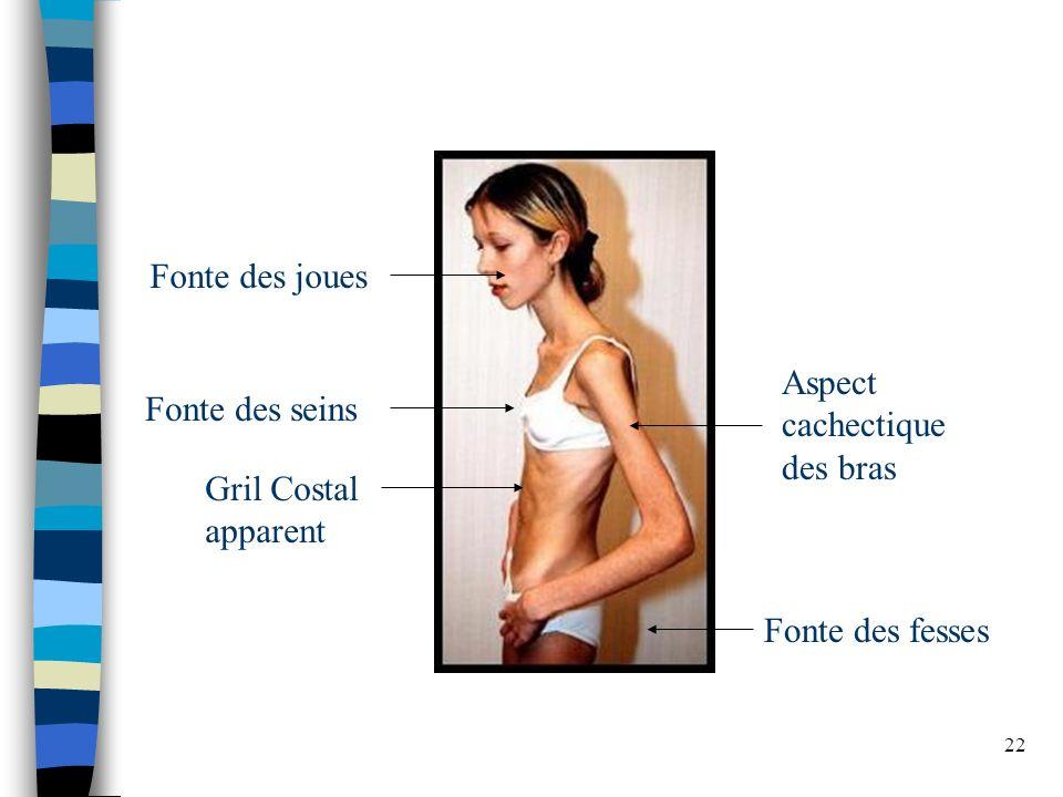 22 Fonte des fesses Fonte des seins Gril Costal apparent Fonte des joues Aspect cachectique des bras