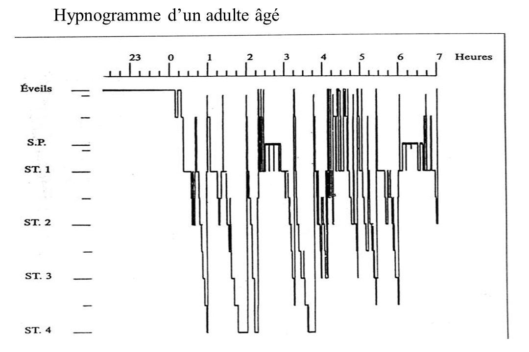 Hypnogramme dun adulte âgé