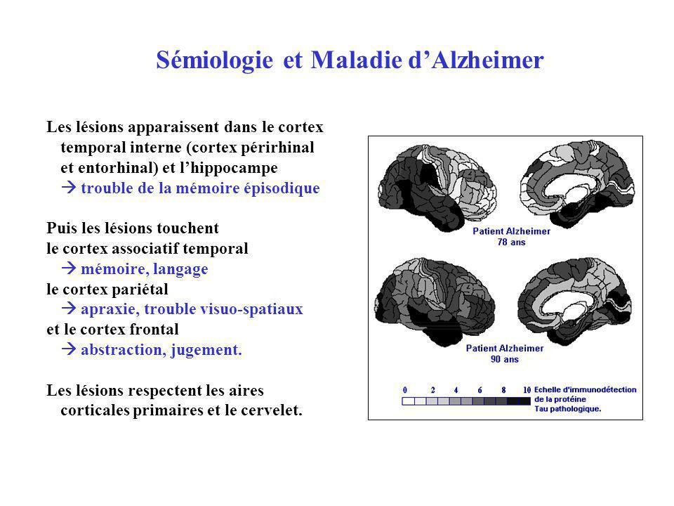 Les lésions apparaissent dans le cortex temporal interne (cortex périrhinal et entorhinal) et lhippocampe trouble de la mémoire épisodique Puis les lé