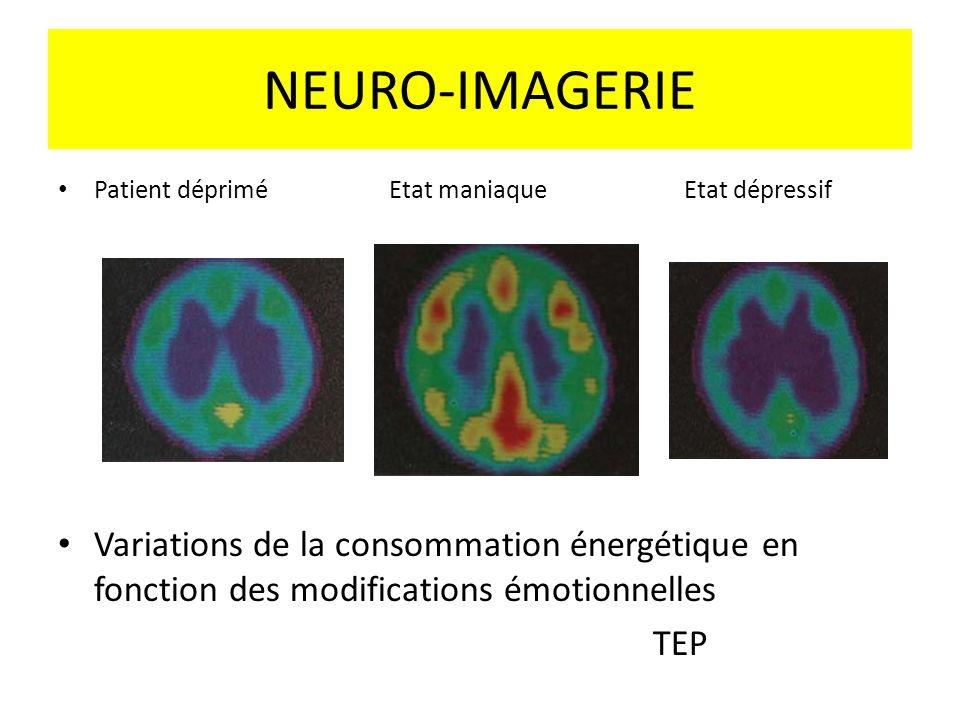 NEURO-IMAGERIE Patient déprimé Etat maniaque Etat dépressif Variations de la consommation énergétique en fonction des modifications émotionnelles TEP