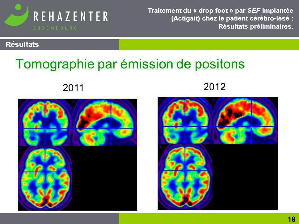 Résultats 18 Traitement du « drop foot » par SEF implantée (Actigait) chez le patient cérébro-lésé : Résultats préliminaires.