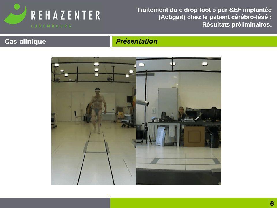 Méthode Evaluations Evaluation des capacités dindépendance : COPM Qualité de marche : test des 10 mètres et des 6 minutes Evaluation électrophysiologique de la spasticité : rapport H max /M max Analyse quantifiée de la marche: paramètres de marche, cinématique, dynamique Imagerie encéphalique (M-1 VS M+12) : IRMf, PETscan, TMS.