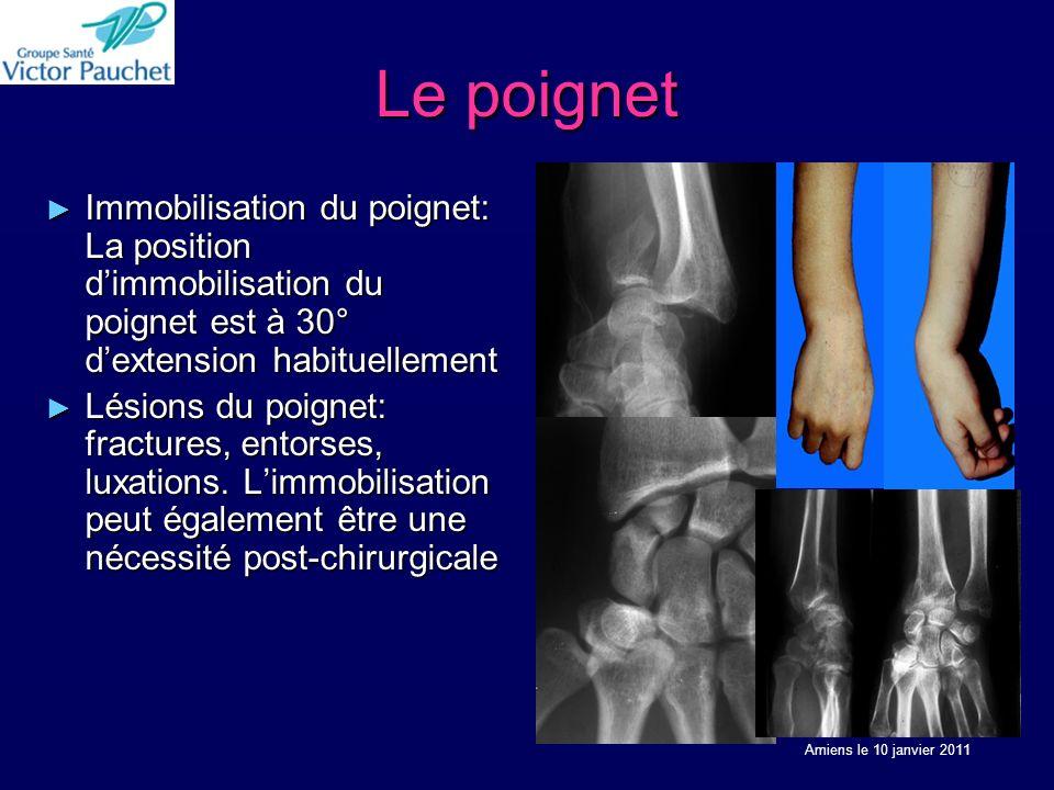 Le poignet Immobilisation du poignet: La position dimmobilisation du poignet est à 30° dextension habituellement Immobilisation du poignet: La position dimmobilisation du poignet est à 30° dextension habituellement Lésions du poignet: fractures, entorses, luxations.
